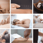 Hints and Tips For Finding a Great Acupuncturist in Fort Lauderdale